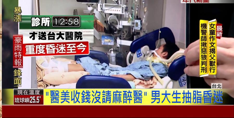 【抽脂麻醉】抽脂手術最容易爆發的致死糾紛,第一名居然是麻醉? (3-3)