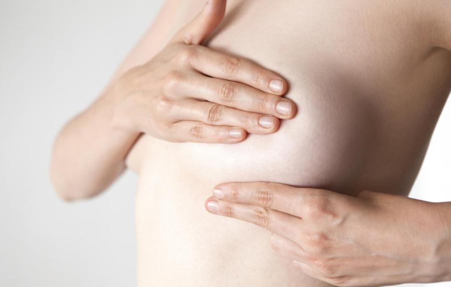 【自體脂肪隆乳風險】隆乳鈣化、硬塊與併發症的處理!(1-27)