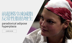 CoolSculpting冷凍減脂導致的「反常性脂肪增生-PAH」-蔡家碩醫師分析